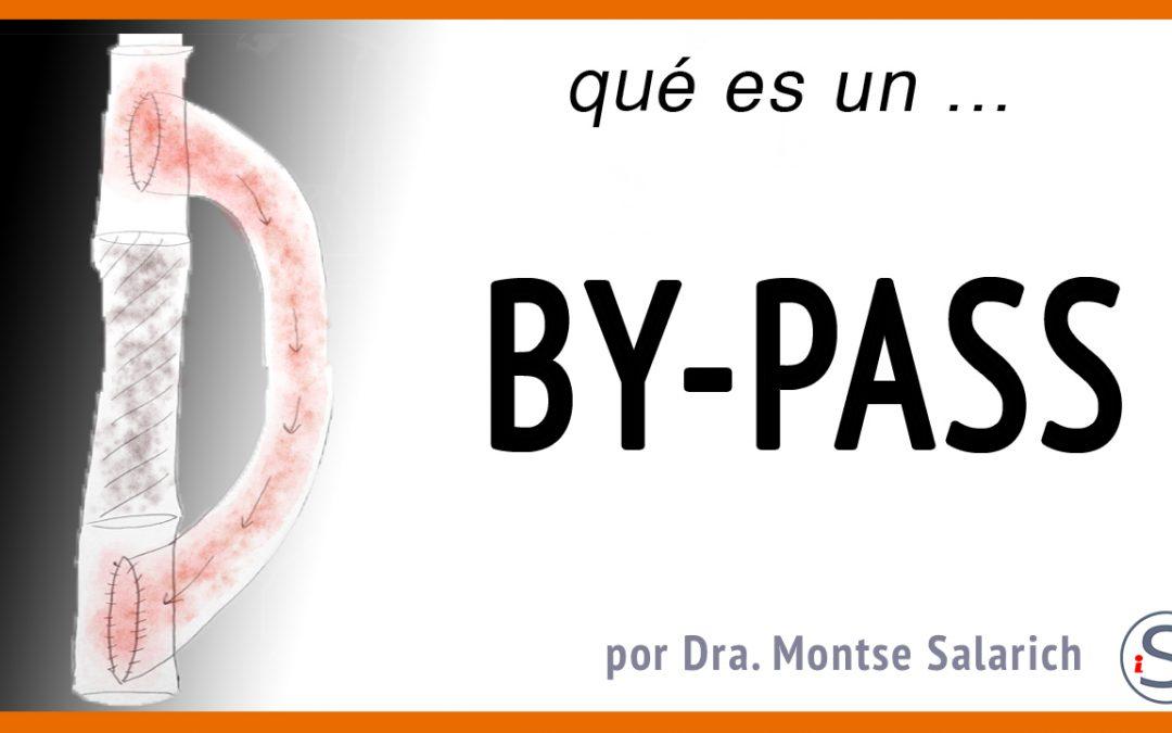 Operación de ByPass
