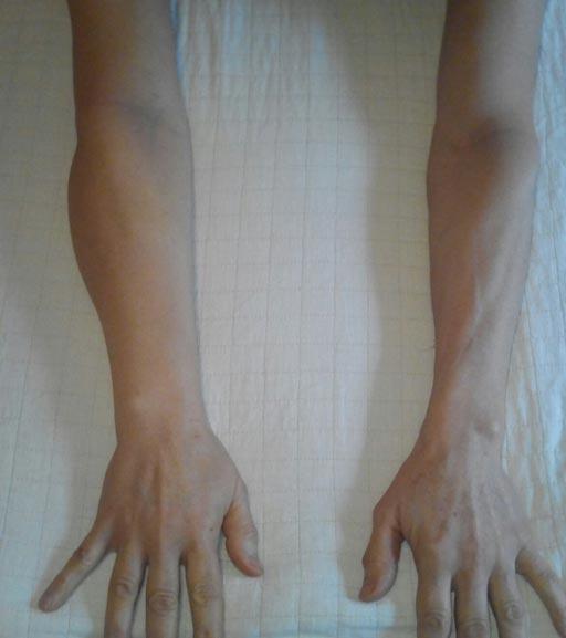 Linfedema en miembro superior después de trasplante de células madre: brazo deshinchado y con volumen normal.