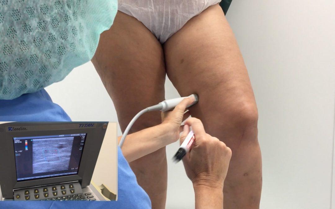 Tratamiento de Varices por Radiofrecuencia