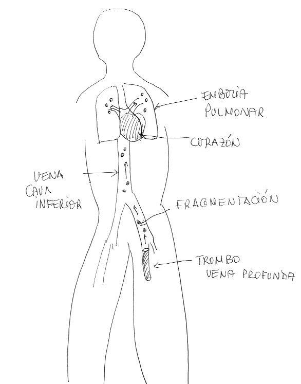 Fragmetanción de Trombo y posterior embolia pulmonar - Trombosis Venosa Profunda