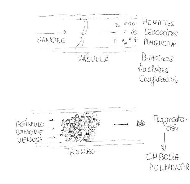Formación de Trombo, fragmentación y posterior embolia pulmonar - Trombosis Venosa Profunda