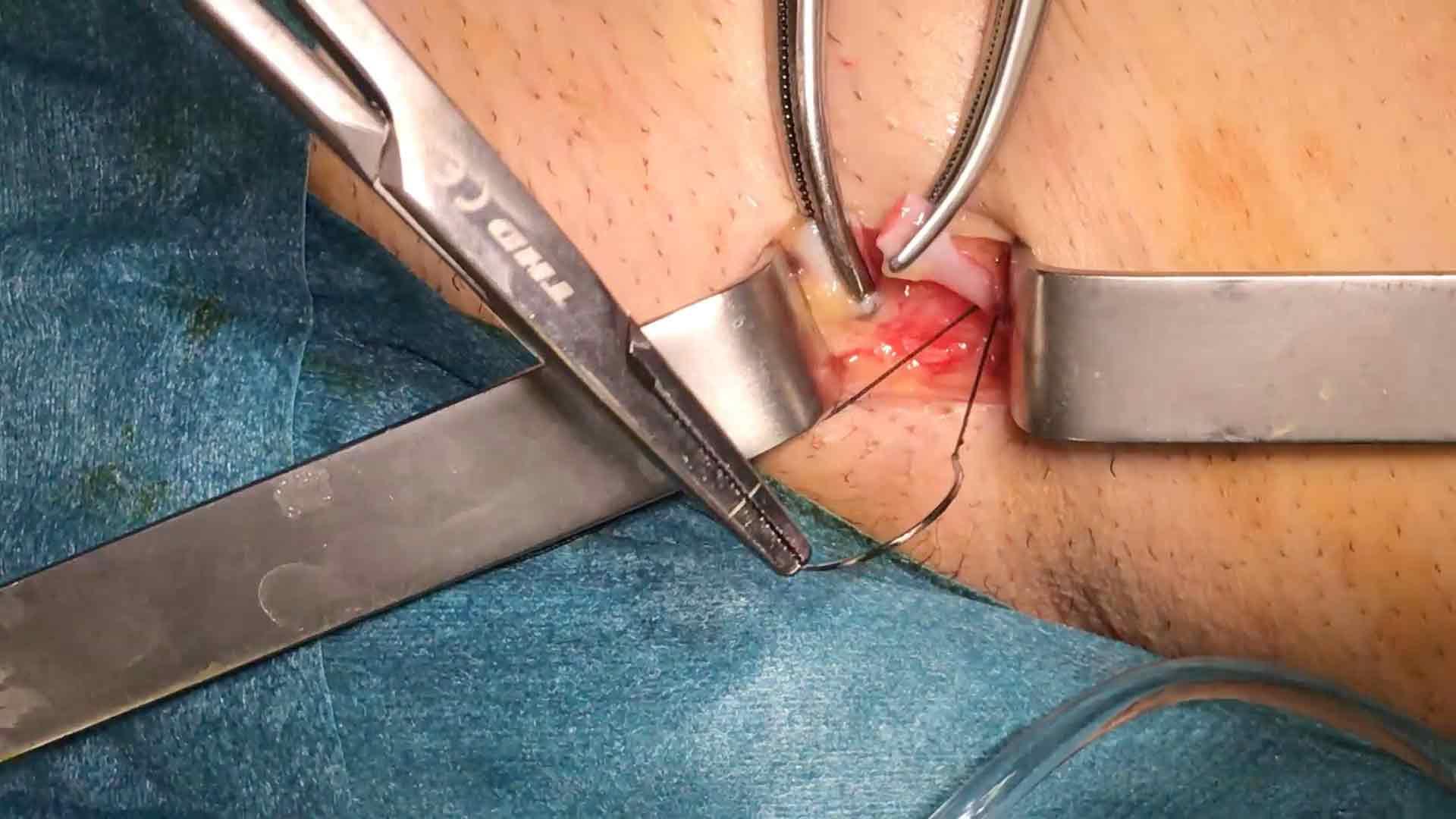 Disección Vena Safena en Cirugía de Varices Chiva