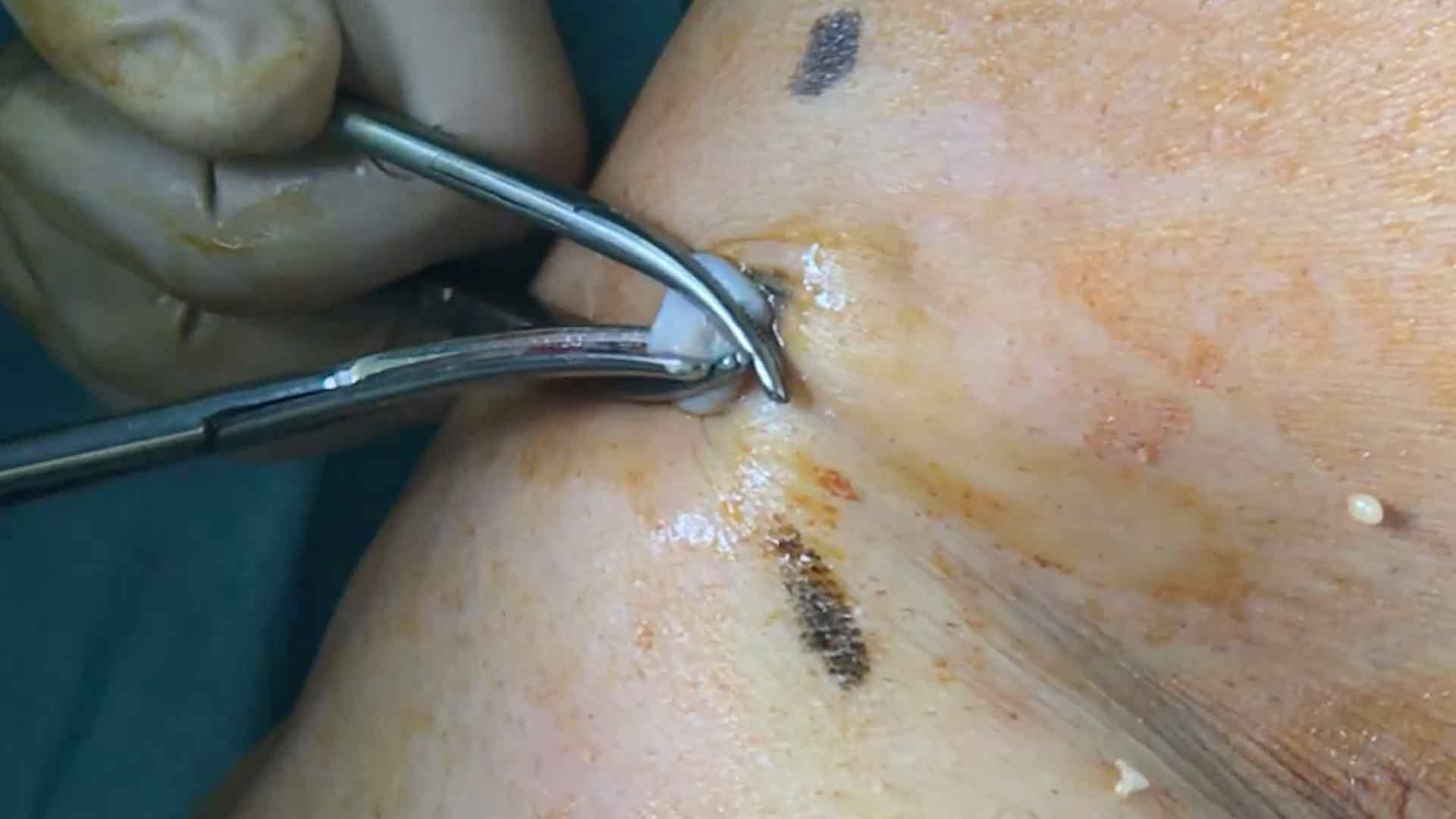 Flebectomía ténica de varices Chiva